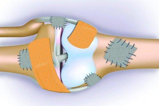 کتاب صوتی راهنمایی پزشکی: پوکی استخوان (نویسنده:پروفسور جولیت کامستون)